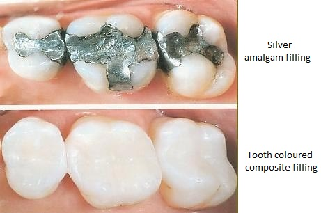 picture of teeth in a mouth with metal fillings replaced with natural looking fillings