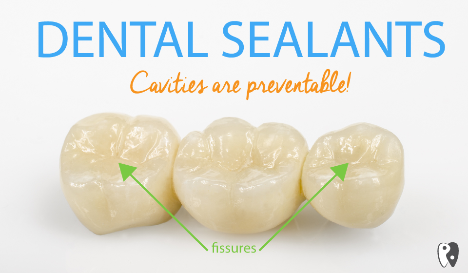 Dental Sealants can prevent cavities